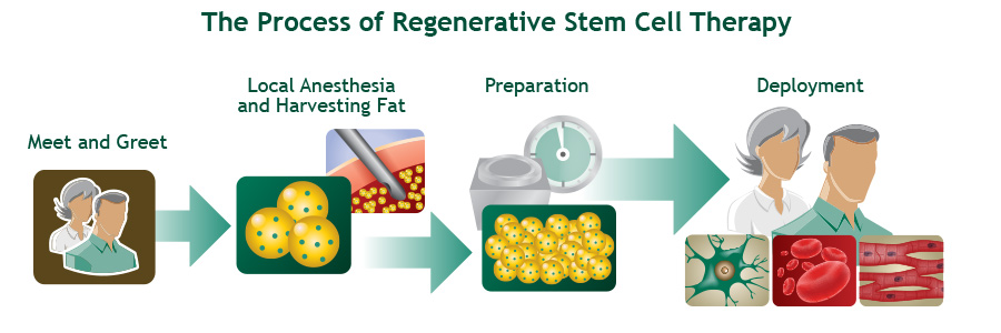 The process of stem cell therapy